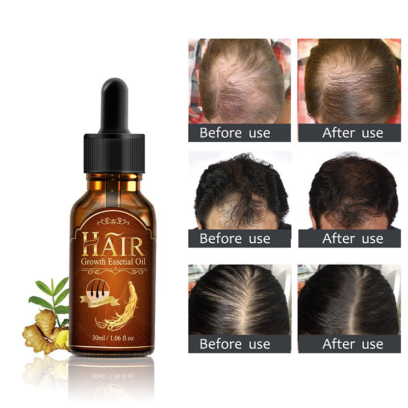 Men Women Hair Loss Treatment Hair Essence Care Fast Powerful Repair Root Hair Growth Serum