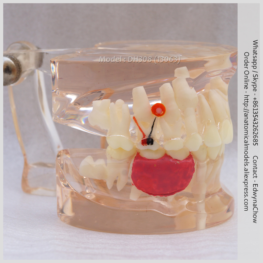 13063 DH308 Transparent Missing Deciduous Teeth Model,  Medical Science Educational Teaching Anatomical Models 12461 cmam anatomy23 breast cancer cross section training manikin model medical science educational teaching anatomical models