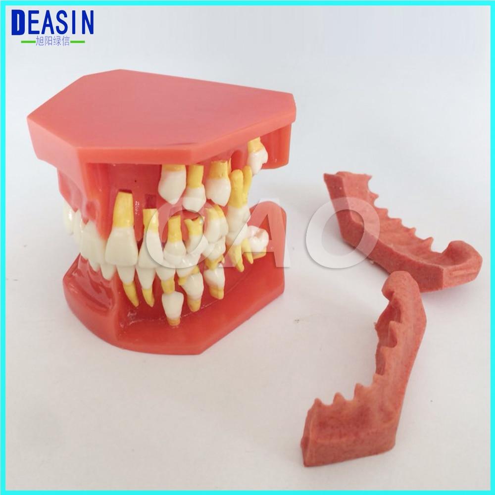 Children 's deciduous teeth replacement model, milk permanent teeth alternately display model oral communication model