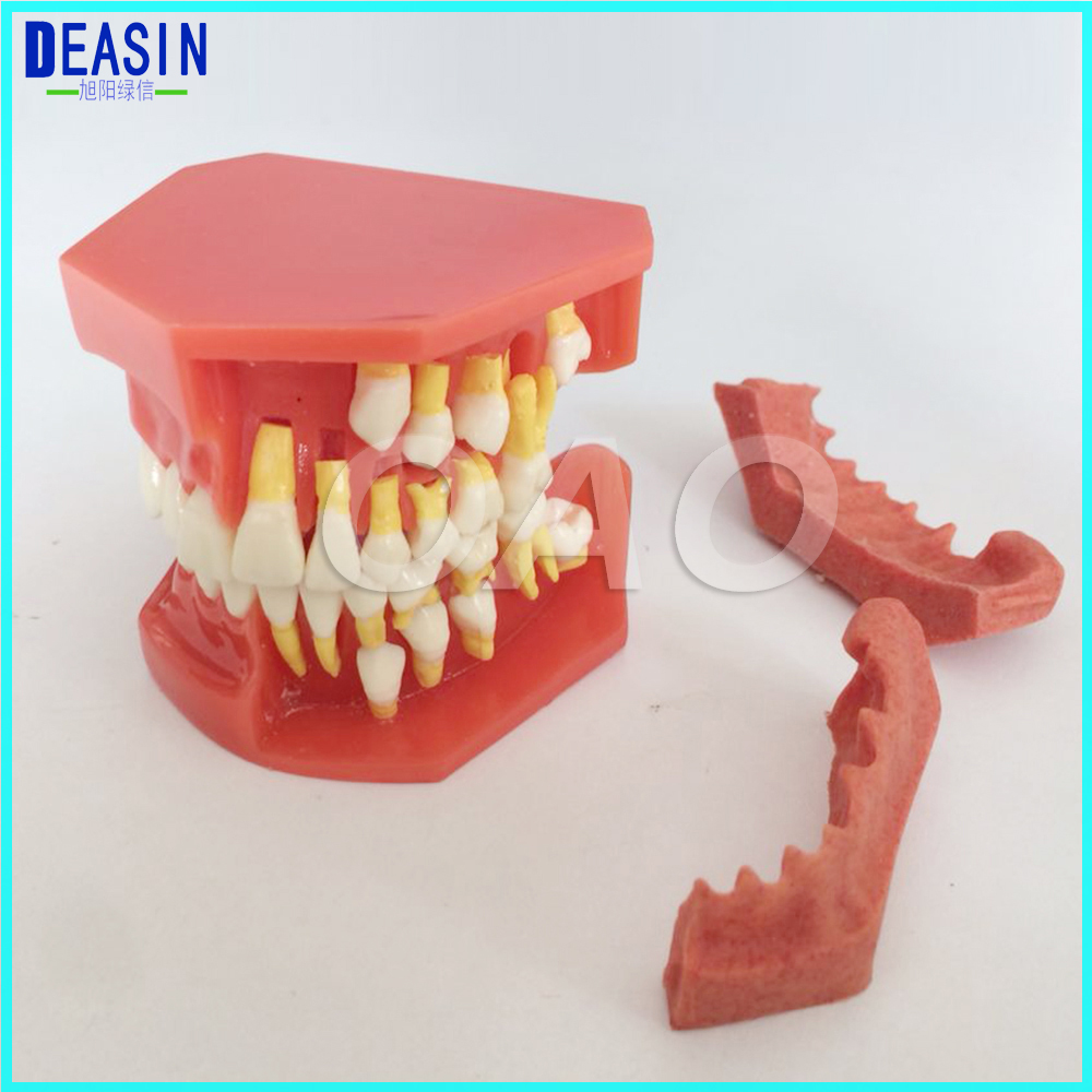 Children 's deciduous teeth replacement model, milk permanent teeth alternately display model oral communication model sagitally section model about tissue decomposition model for doctor patient communication model with magnetic