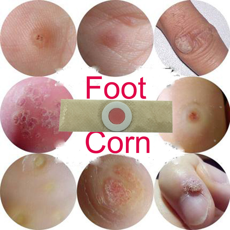 10pcs Foot Care Medical Plaster Foot Corn Removal Calluses Plaster Warts Thorn Plaster Health Care For Relieving Pain kongdy 12 pieces 2 boxes corn callus remover patch feet care medical plaster health care corn cutter foot callus removal tools