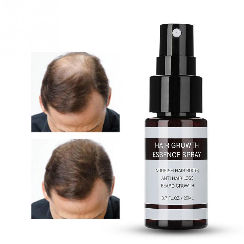 Haarausfall-produkte 20 Ml Haar Wachstum Essenz Spray Anti Haarausfall Behandlung Essenz Nährende Verbesserung Haar Wurzeln Freigabepreis