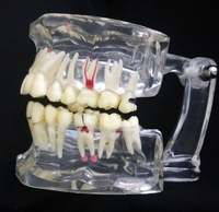 Dental modelo de patologia Oral casos modelo abrangente de Educação Médica frete grátis|medical model|dental education modelsdental model -