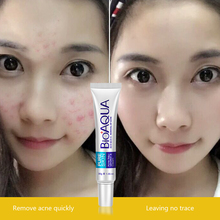 Bioaqua 30g Anti Acne Cream / Oil Control / Shrink Pores/ Acne Scar Remove/ Face Care Skin Care