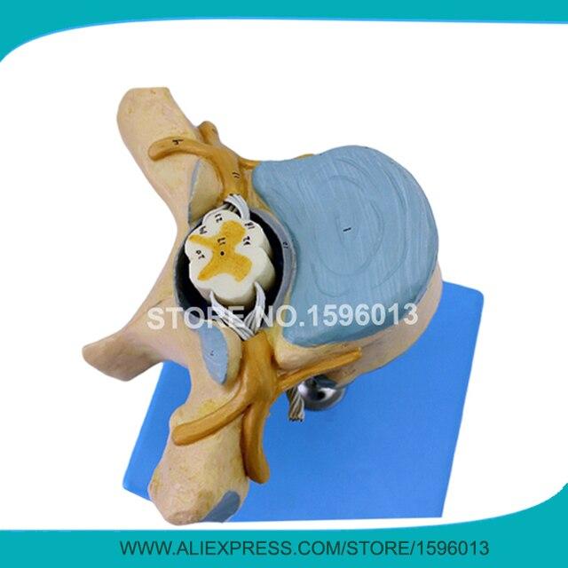 Anatómico vértebras torácicas con la médula espinal y los nervios ...