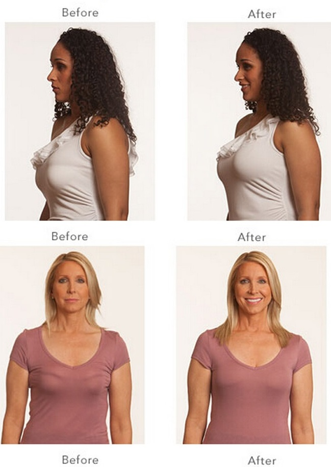 push up bras before and after wwwpixsharkcom images