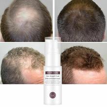 Fast Hair Growth Serum Essence Liquid Spray Nourish Hair Roo