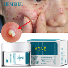 HEMEIEL Acne Treatment Face Cream Anti Acne Scar Removal Pim