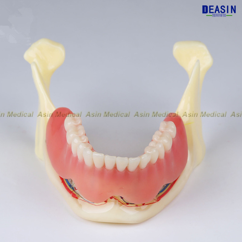 2018 high quality Resin mandibular denture Coverage model Mandible belt nerve model Display dentures Removable teeth model coverage metrics for model checking