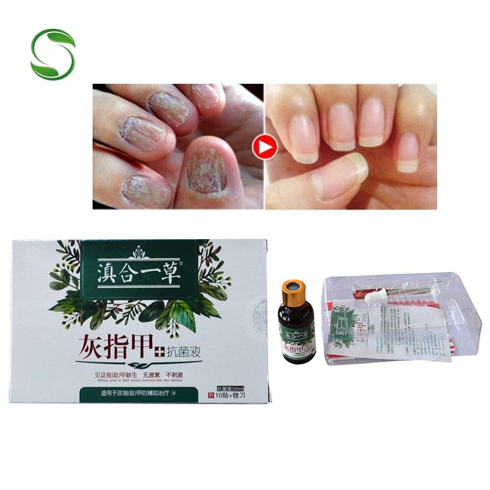 Pacote 1 Remédio Para Unha Fungo Tratamento Antifúngico Dedo Do Pé Unha Fungo Do Pé Pés Cuidados Clareamento Remover Gel Creme de Onicomicose