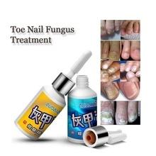 Fungal Nail Treatment Onychomycosis Paronychia Anti Fungal Nail Infection Toe Nail Fungus Repair Liquid Feet Care 15ml+15ml