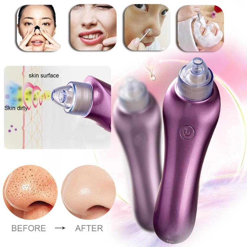 Vacuum Pore Cleaner Face Blackhead Acne Black Spot Removal Suction Machine Cleansing Face Facial Instrument 10pcs remove mineral mud blackhead pore cleansing cleaner removal nose membranes blackhead