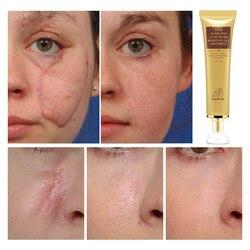 LANBENA крем для удаления шрамов от акне крем для восстановления кожи крем для лица акне лечение акне отбеливающий крем от угрей растяжки 30 мл