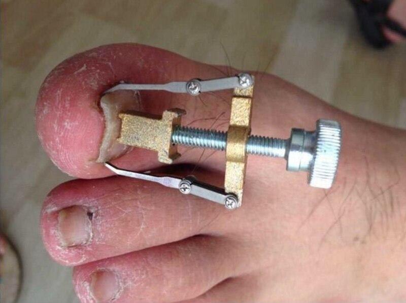 doble uña del pie