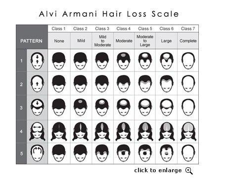 Cheap hair fall