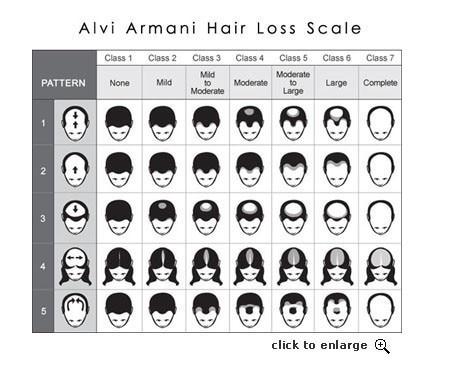 Nova restauração capilar regrowth do cabelo do