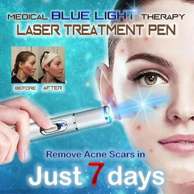 1 piezas azul médica de la terapia de luz tratamiento láser pluma suave cicatriz eliminación de arrugas tratamiento dispositivo quitar las venas varicosas láser