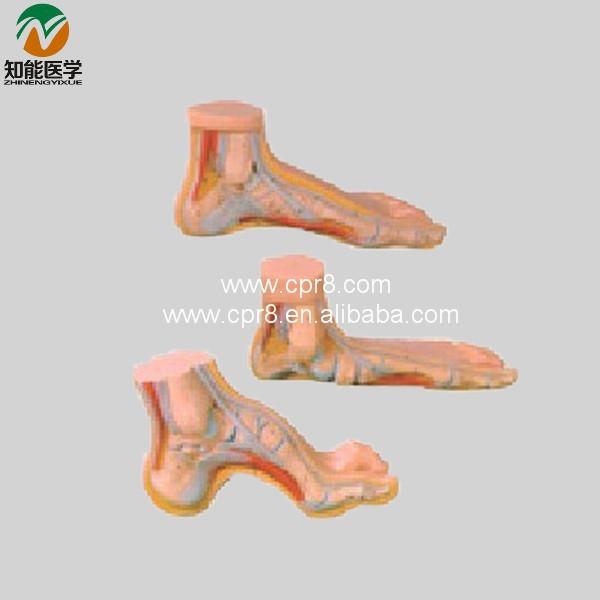 BIX A1069 Normalen Fuß Flache Fuß Bogen Fuß Anatomie Modell WBW151 ...