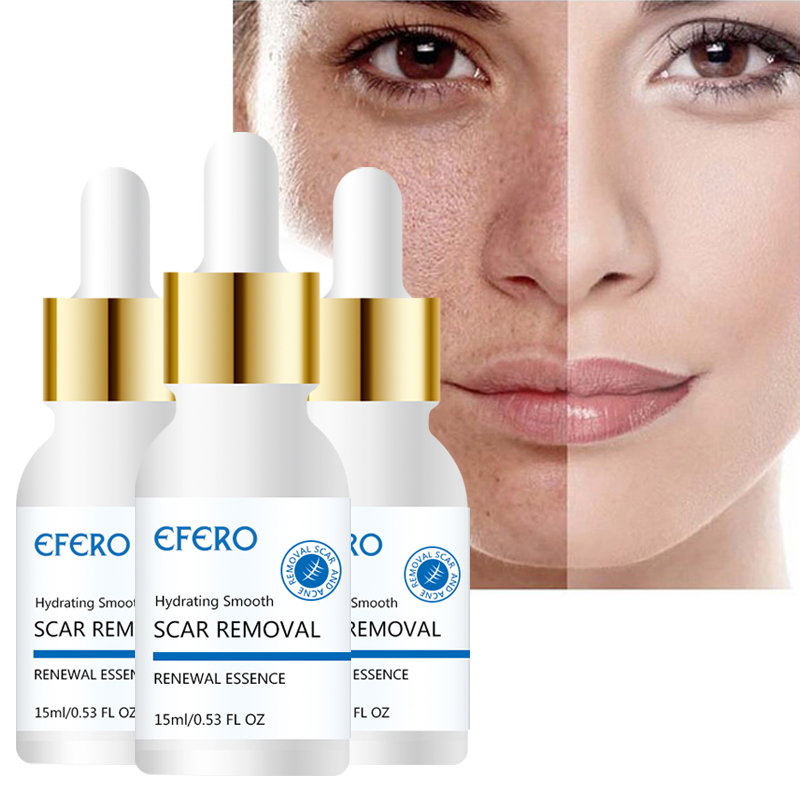 1 Bottle Whitening Face Serum Acne Removal Face Skin Care Essence Repair Moisturizing Face Cream Anti Aging Serum Shrink Pores in Serum from Beauty Health