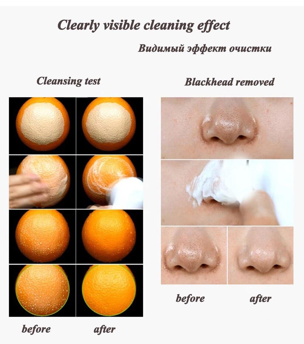 Очищающая щетка для лица Гальваническая спа удаления черных