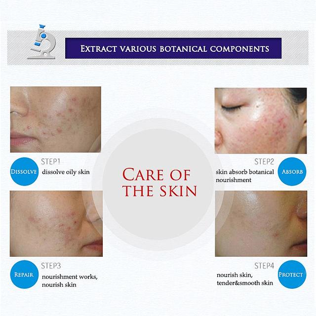 Face cream whitening skin care anti acne treatment