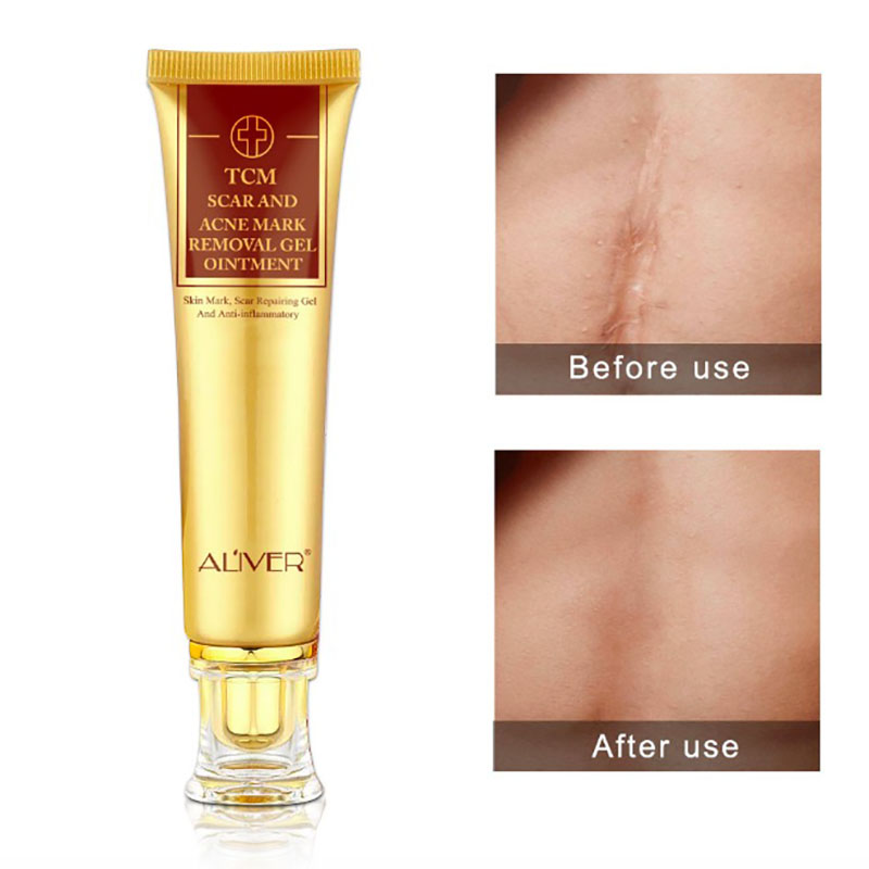 New Face Cream Acne Scar Removal Cream For Face Skin Care Whitening Cream Snail Stretch Marks Nourishing For Face