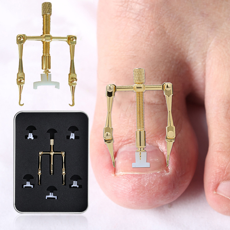 GUJHUI Ingrown Toe Nail Correction Tool Fixer Recover Toe Paronychia Nail Brace Tools Ingrown Toenails Pedicure Tool