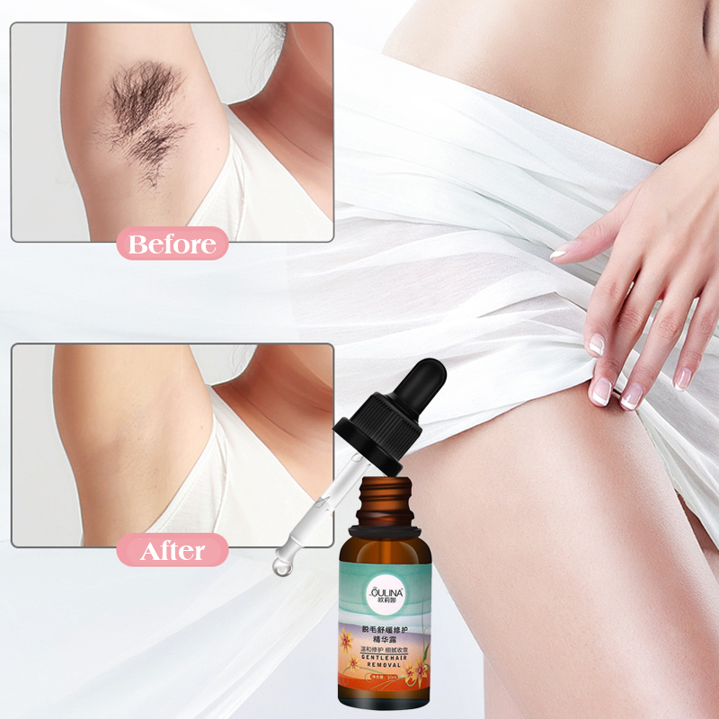 Hair Removal Repair Essence Liquid Hyaluronic Acid Hair Removal Serum Hair Growth Inhibitor For Depilation Facial Leg Body Care