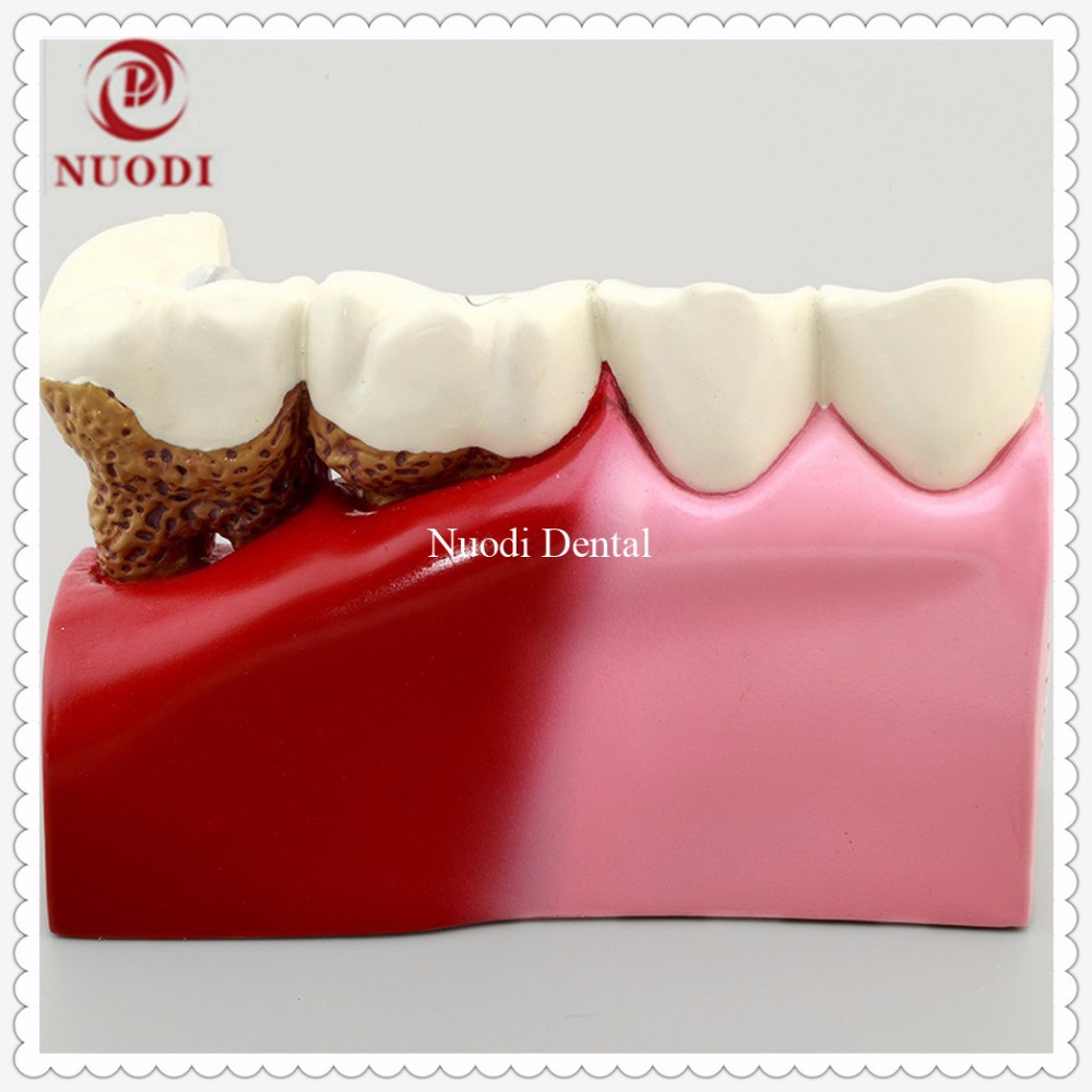 Dentistry  Disassembling Caries Dental Tooth Modelexplaining Secondary Caries After Fitting Prosthetic Restoration