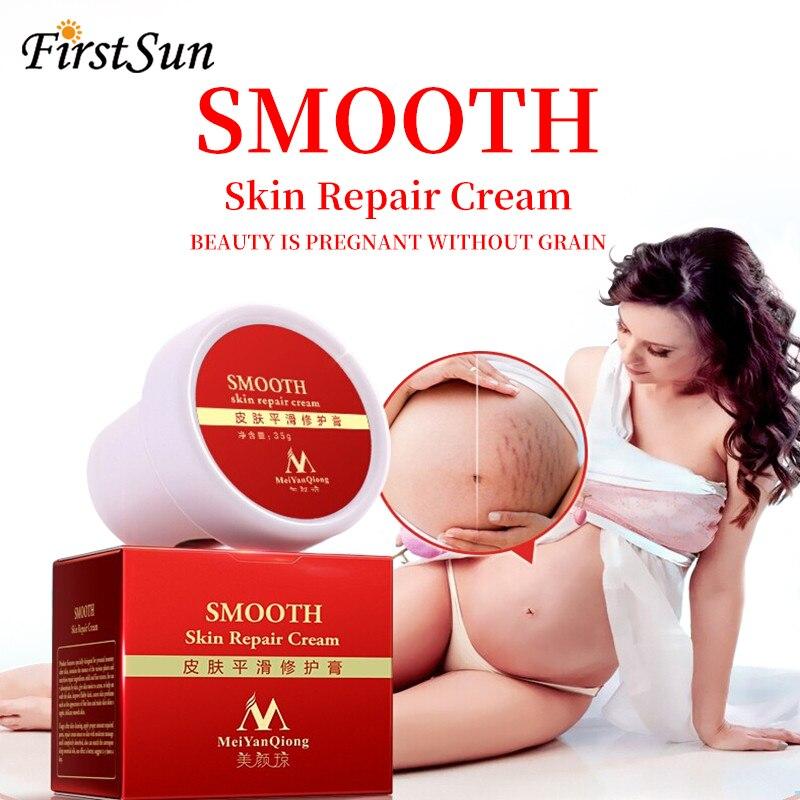 Body-Cream Stretch-Marks Remove-Scar-Care Pregnancy-Serum For Postpartum