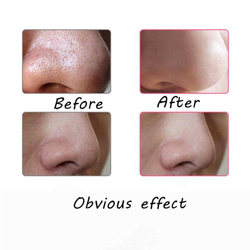 1 conjunto Acne Comedão Blackhead remover Pore