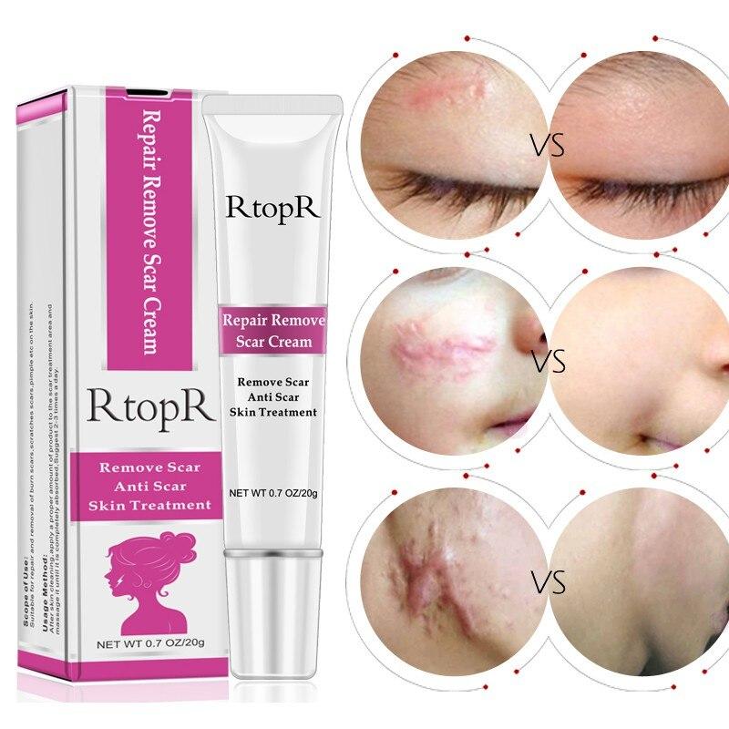 Acne Scar Cream Essence Anti Acne Remover Cream Fa