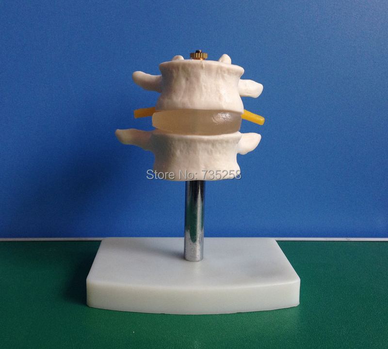 Lumbar Set(2 pcs) Lumbar spine model hot advanced cutaway osteoporosis spine model lesions in the lumbar spine model