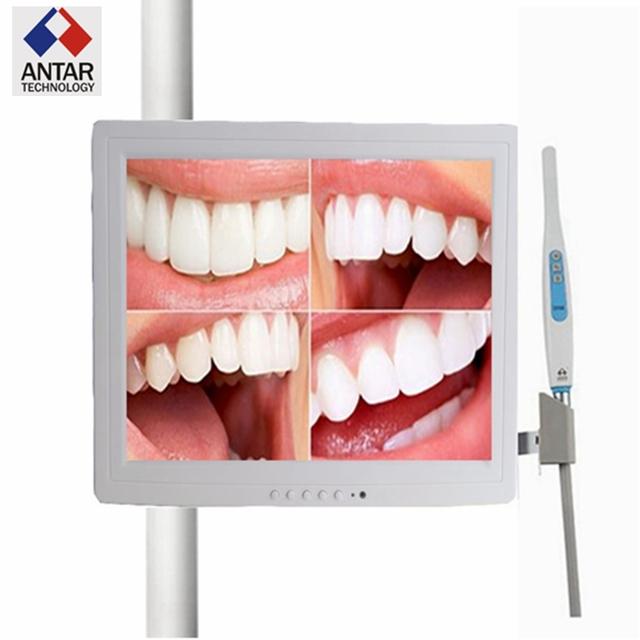 AT0210 con un 15 pulgadas de monitor VGA Cámara Intraoral Dentista Cámara Endoscopio Endoscopio 6 Led cámara dental odontologia