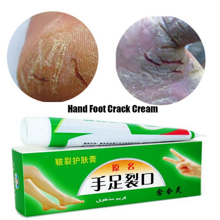Useful Herbs Foot Cream Anti-Chapping Skin Repairing Moisturizer For Rough Dry And Cracked Chapped Feet Heel