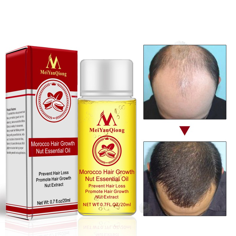 20ml Moroccan Hair Growth Nut Essential Oils Hair Faster Grow Oil Stop Hair Loss Products Men Women Beauty Hair Care
