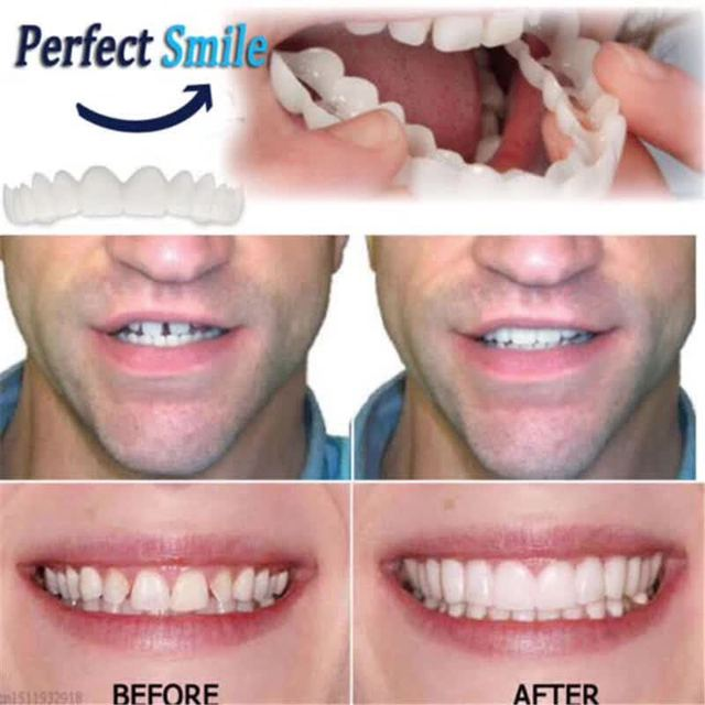 1 Pc Kenyamanan Atas Kawat Gigi Gigi Snap Senyum Sempurna Gigi Palsu
