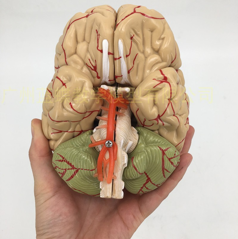 1:1 Medical Teaching Anatomical Brain Model With Cerebral Arteries