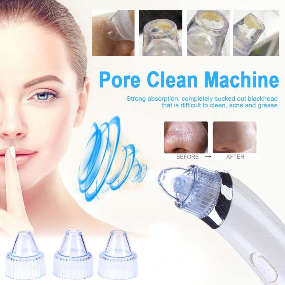 Heißer Pro Vakuum Poren Reiniger Mitesser Entferner Elektrische Akne Sauber Peeling Reinigung Comedo Saug Gesichts Schönheit Maschine