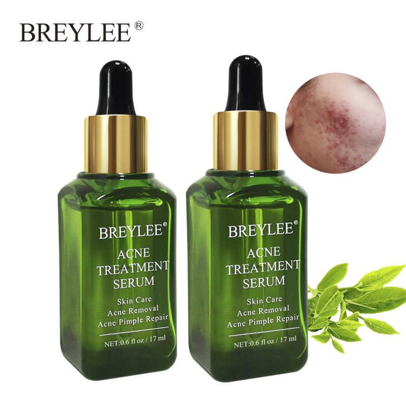 BREYLEE 17ml Acne Treatment Serum ชาธรรมชาติสารสกัดจาก Essence สิวแผลเป็นสิวกำจัด Skin Care ผลิตภัณฑ์ TSLM2