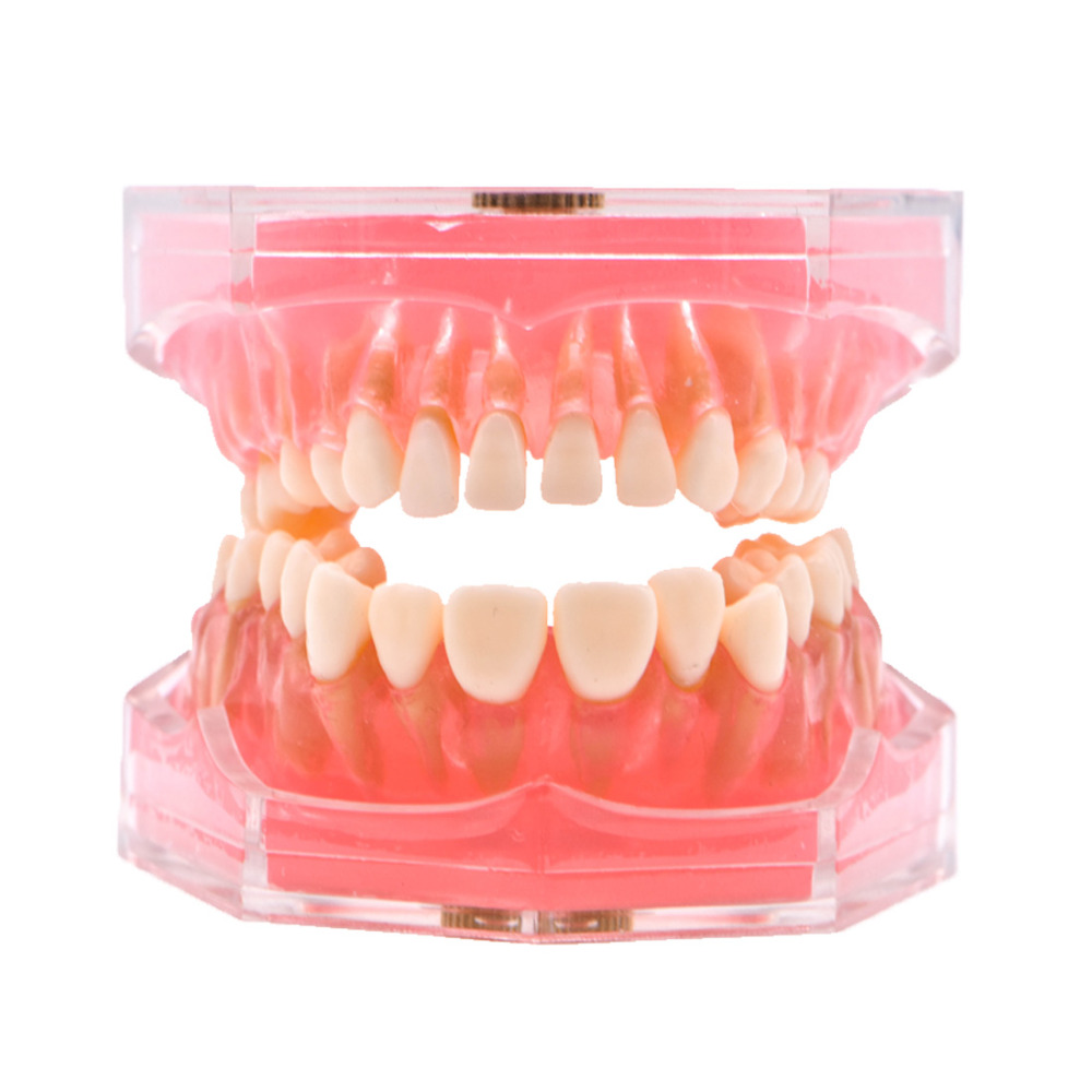 Dental dentist soft foundation allow pluck pull suck out pull up Removable Teeth Soft Gum Study teaching model ADULT TYPODONT dental removable teeth model adult typodont model for dentist color orange