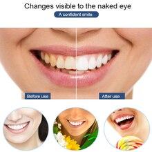 Smart Silicone Teeth Whitening Device LED Blue Light Whitening Vibration Massage Oral Care