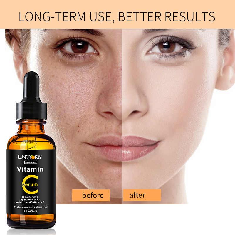 vitaminas+para+la+piel+con+acne