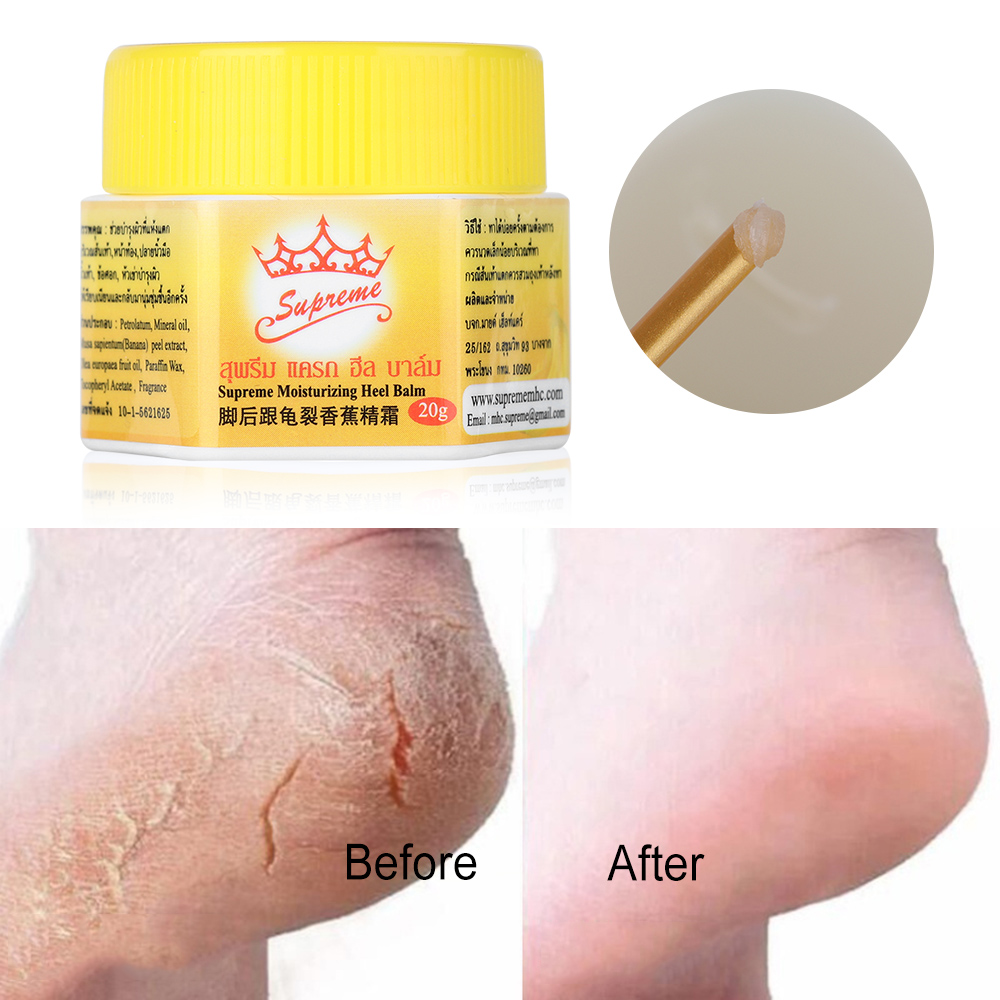 1 Box Cracked Heel Cream For Rough Dry Cracked Chapped Feet Remove Dead Skin Soften Foot Cracked Heal Repair Cream Foot Care
