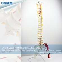 CMAM-SPINE05-1 Vertebral Column with Pelvis and Painted Muscles Model, Medical Science Educational Teaching Anatomical Models