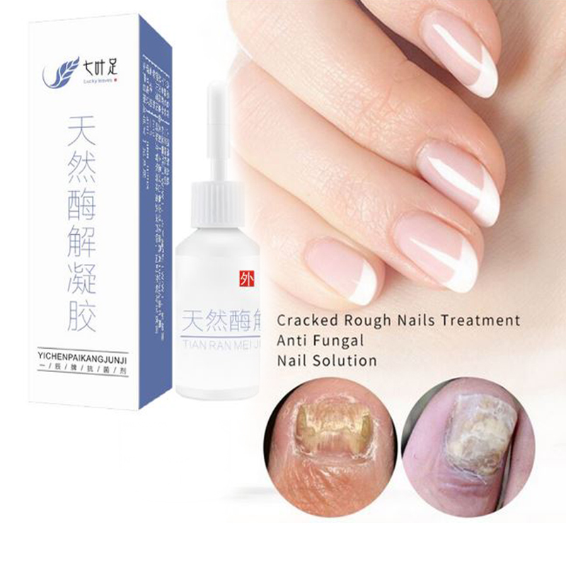 DUS 2PCS Anti Fungal Treatment Nail Onychomycosis Paronychia Infection Herbal Toe Finger Nails Health Beauty Accessories