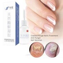 DUS 2PCS Anti Fungal Treatment Nail Onychomycosis Paronychia Infection Herbal Toe Finger Nails