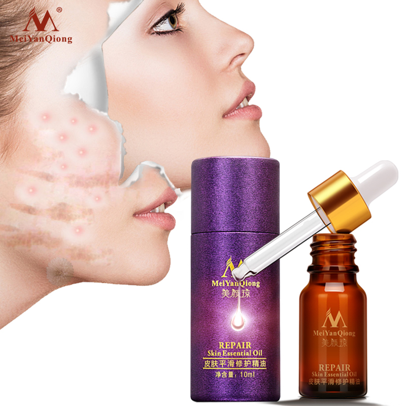 Makeup Skin Care Smooth Acne Trauma Scar Repair Liquid Serum Oil-control Moisturizing Lavender Skin Repair Essential Oil 10ml
