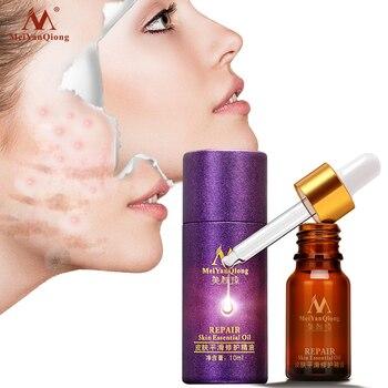 Maquillaje cuidado de la piel suave acné Trauma curación de cicatrices líquido aceite sérum-control hidratante de Reparación DE LA PIEL aceite esencial 10ml