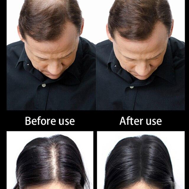 1 Bottle Hair Fiber Keratin Hair Building Fibers Powder Hair Loss Concealer Hair Care Growth Products 4